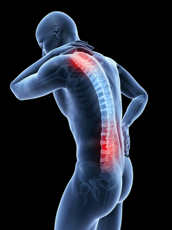 22615933 - 3d rendered illustration of a man having a painful back and neck